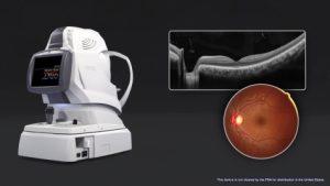 OCT-scan